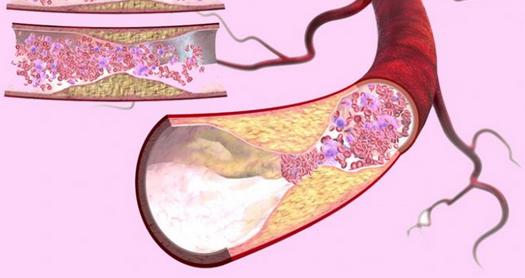 Атеросклероз: 4 рецепта для здоровья сосудов...