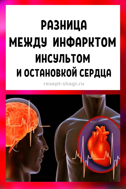 Разница между инфарктом, инсультом и остановкой сердца